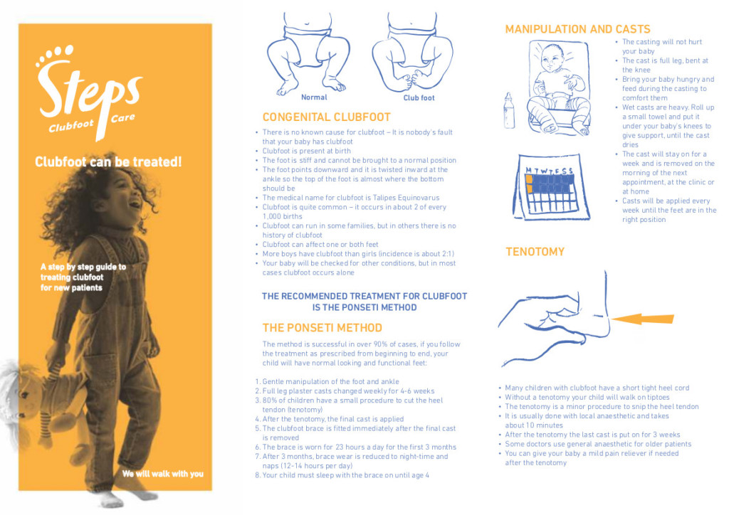 Clubfoot can be treated Steps clubfoot downloads