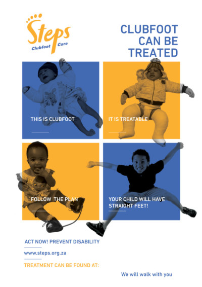 clubfoot can be treated poster download STEPS resources