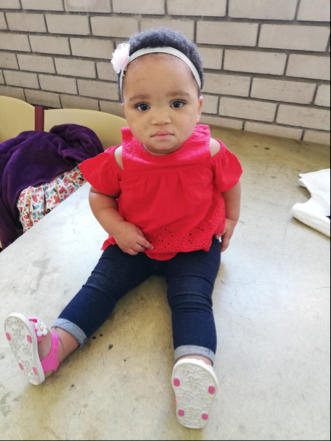 steps clubfoot success story