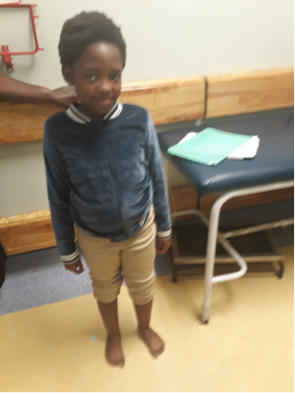 rethabile steps clubfoot success story