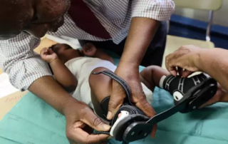 George Mukhari hospital clinic gives children with club feet a chance at a normal life