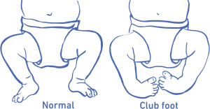 normal vs clubfoot steps clubfoot care